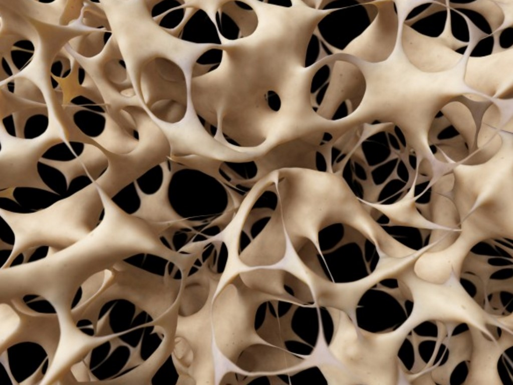Osteomed-forte – New approach to the treatment of pre-senile and senile osteoporosis